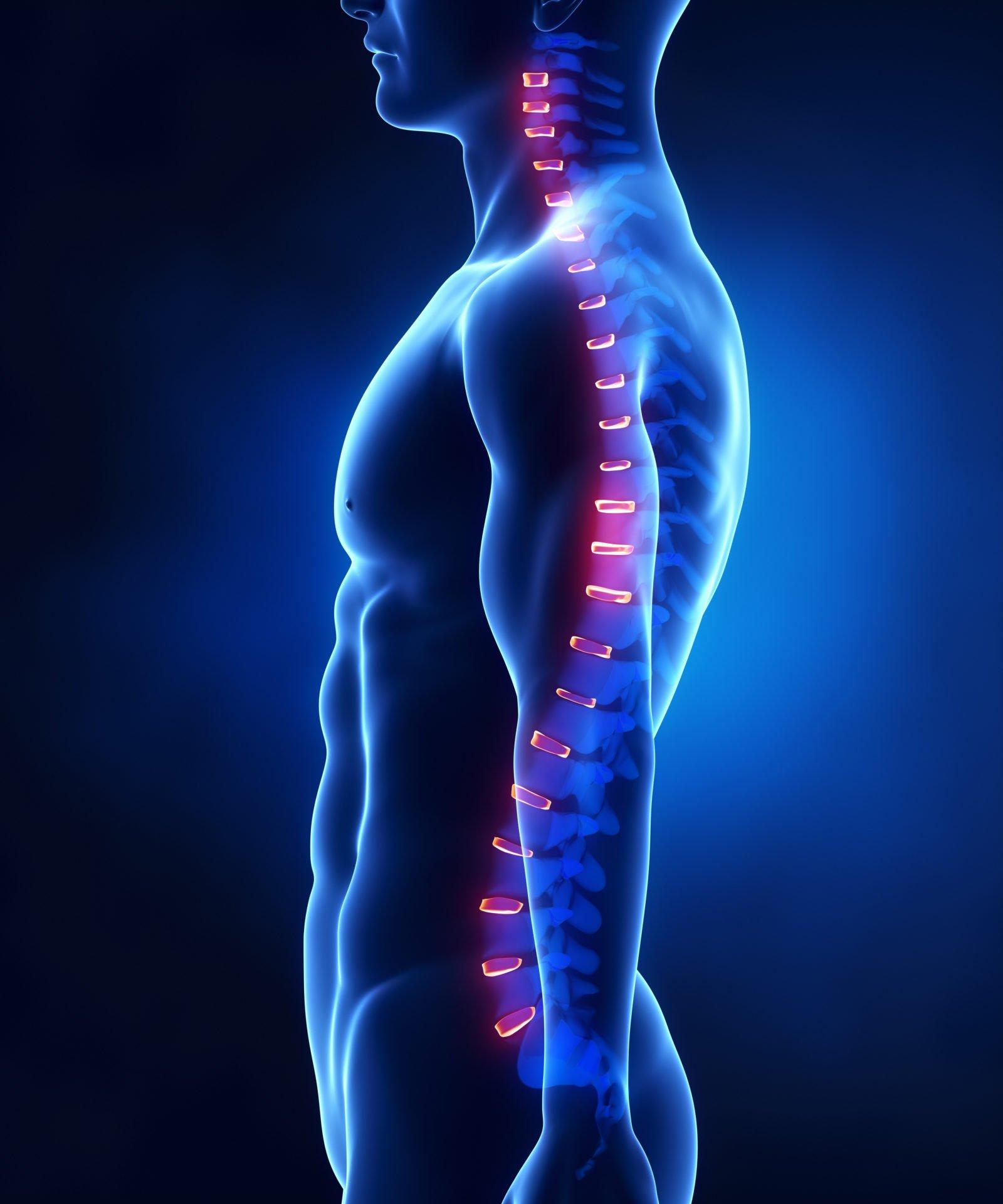 douleurs dos semlles orthopédiques